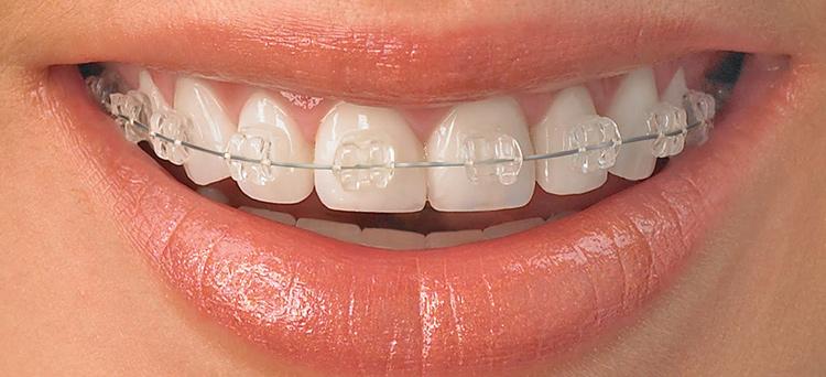 ortodonska-terapija